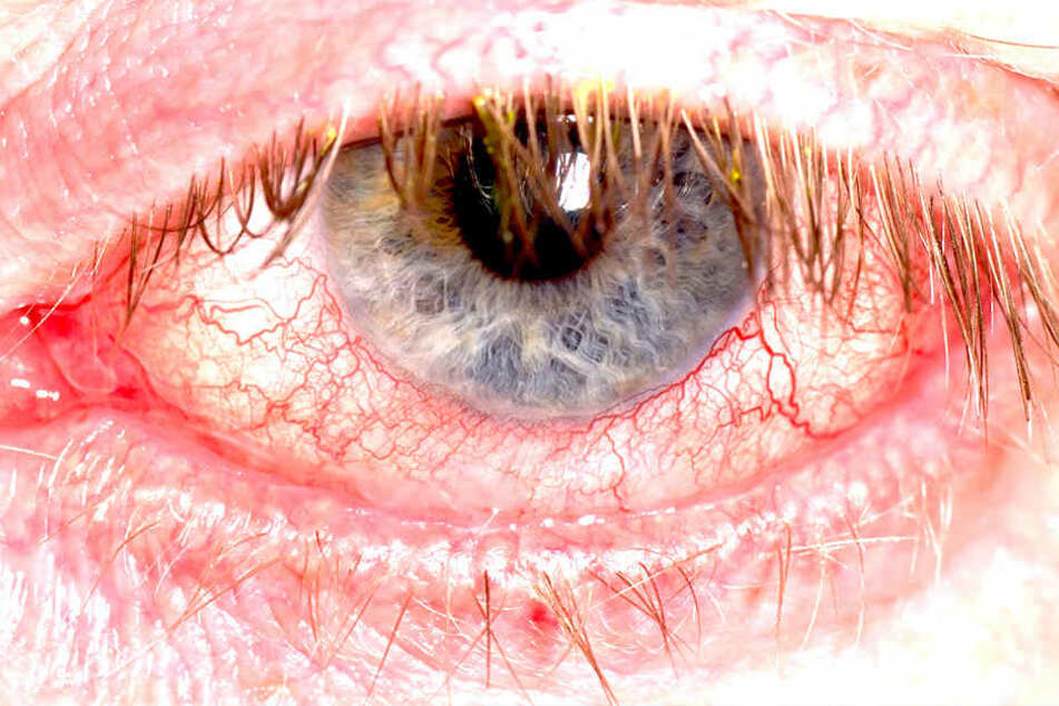 Feststellen kann die Augengrippe  nur der Augenarzt.