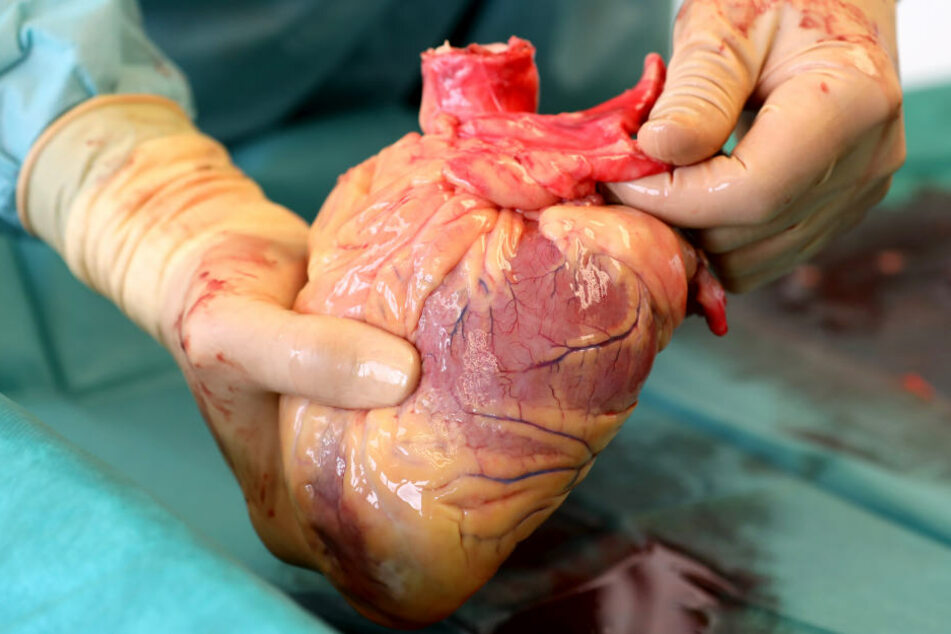 Ein Transplantationsmediziner hält das Herz eines Verstorbenen in den Händen, das kurz zuvor entnommen wurde.