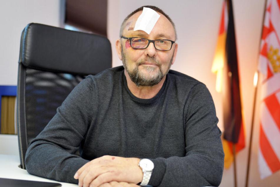 Die Verletzungen sind noch deutlich im Gesicht von Frank Magnitz zu erkennen.