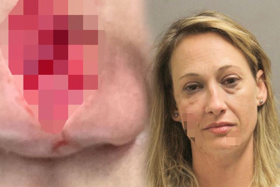 Frau beißt Nachbarin die halbe Nase ab: Dann wird es richtig ekelhaft