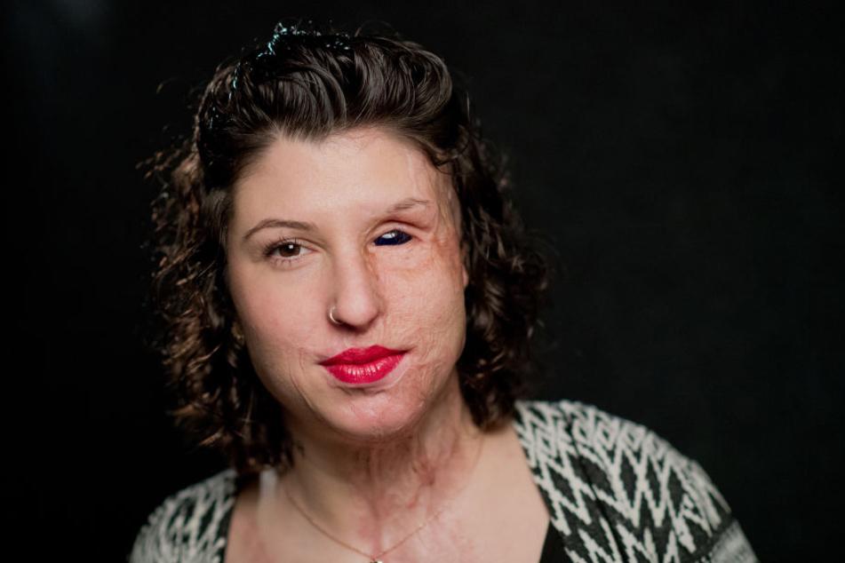 Vor zwei Jahren verätzte ihr Ex-Freund das Gesicht der 29-Jährigen. Dafür wurde er verurteilt.