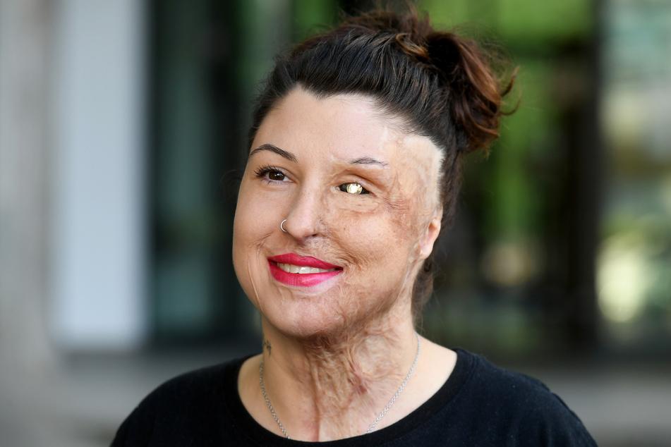 """Vanessa Münstermann (32) hat """"AusGezeichnet"""" aufgelöst. Der Verein half vier Jahre lang von Unfällen oder Verbrechen gezeichneten Menschen."""