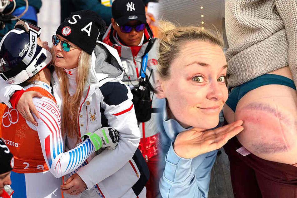 Autsch! Sexy Ski-Stars zeigen nach Sturz ihre blauen Flecken
