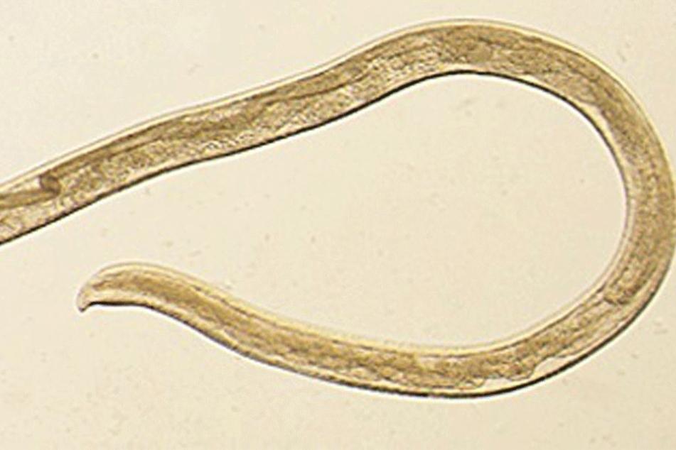 Mikroskopaufnahme zeigt den Wurm Thelazia gulosa.