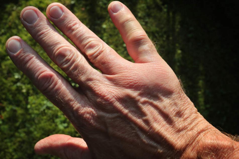 Nach einem Wespenstich ist die Hand angeschwollen. (Symbolbild)