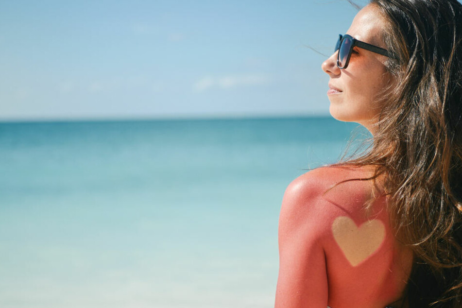 Nicht nachmachen! Sonnenbrand-Tattoos sind gefährlich.