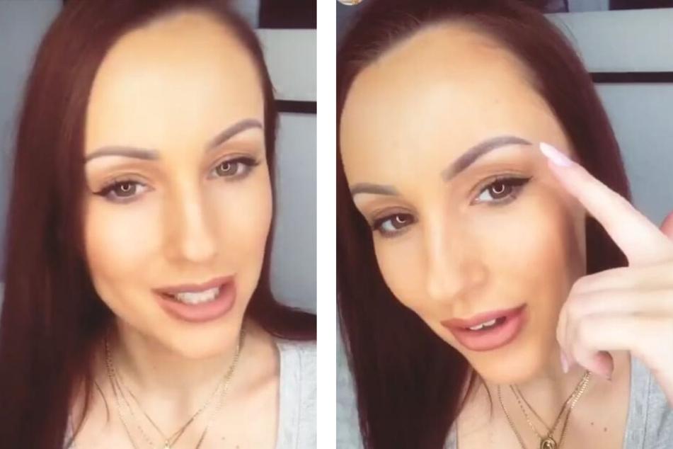 In ihren Instagram-Stories erzählte Bachelor-Babe Isabell Bernsee (28) ihren knapp 22.000 Followern von ihrem Beauty-Eingriff.