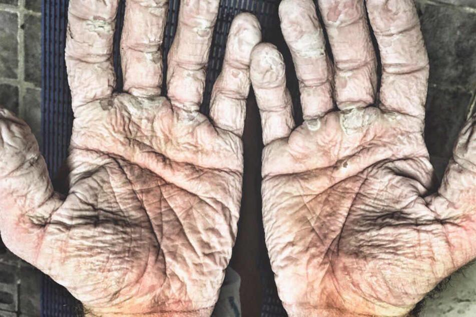 Ganz schön eklig! Wer hat denn so gruselige Hände?