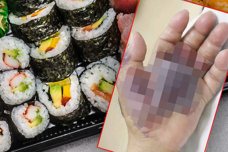 Mann isst Sushi, Tage später verliert er seinen kompletten Unterarm