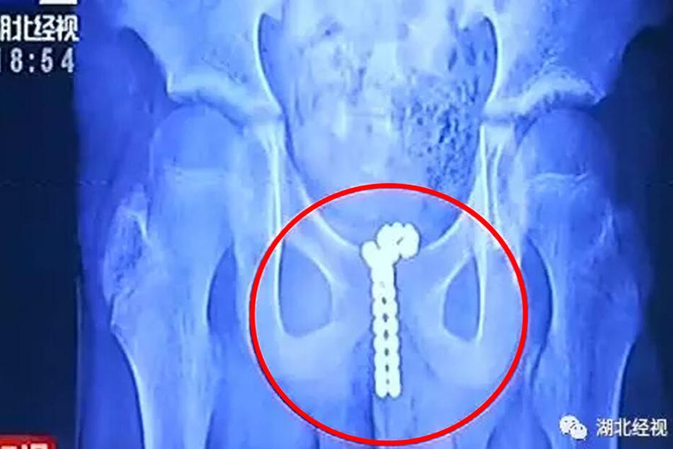 Auf einem Röntgenbild sieht man, dass die Perlen im Harnweg des Jungen stecken.