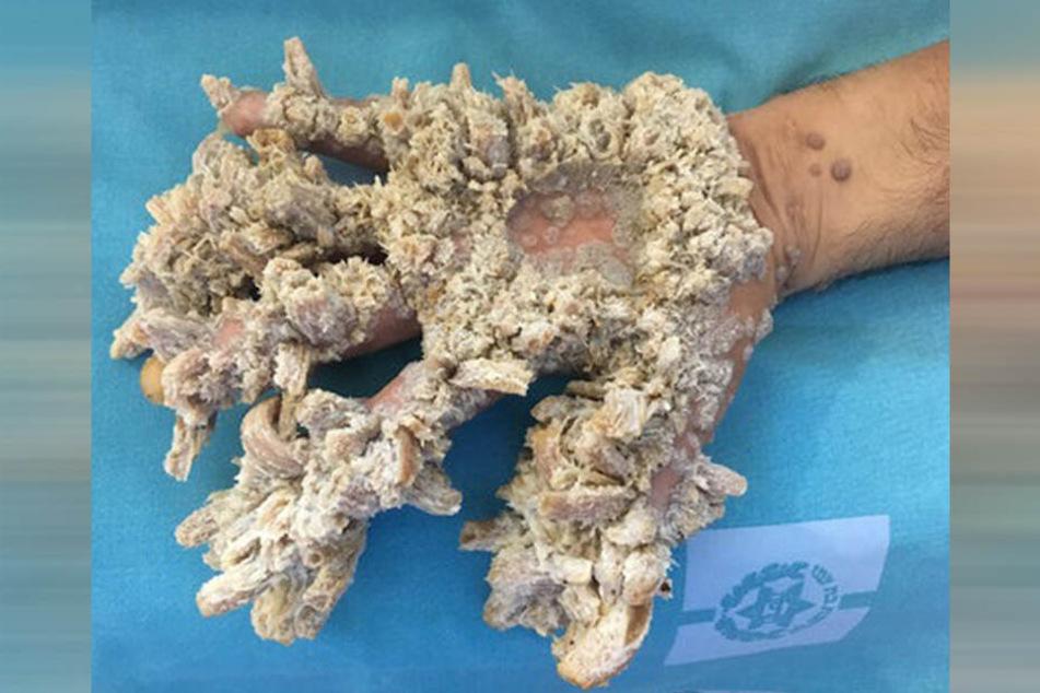 Von den Wucherungen sind vor allem die Hände von Mahmoud Taluli betroffen.
