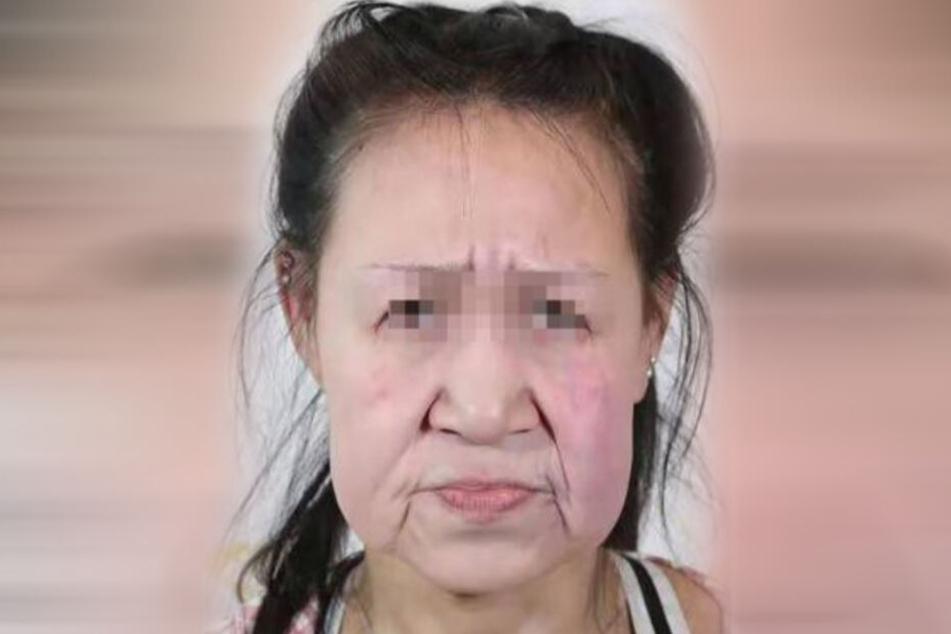 """Das """"Shenyang Sunline Plastic Surgery""""-Krankenhaus veröffentlichte die Bilder von Xiao Feng (15) nur mit leicht gepixelten Augen."""