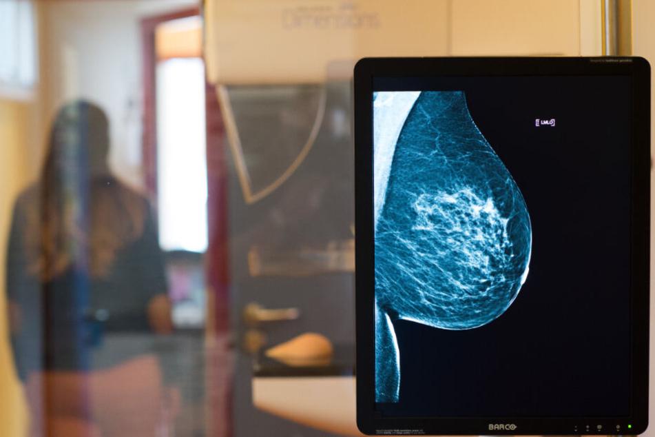 Bei der Mammographie seien die Fehlerquoten deutlich geringer. (Symbolbild)