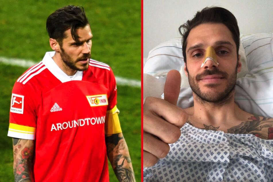 Union Berlins Kapitän Christopher Trimmel (34) unterzog sich am Dienstag einer Operation, um seine Nase richten zu lassen, die er sich am Samstag im Spiel gegen den FC Bayern München gebrochen hatte.