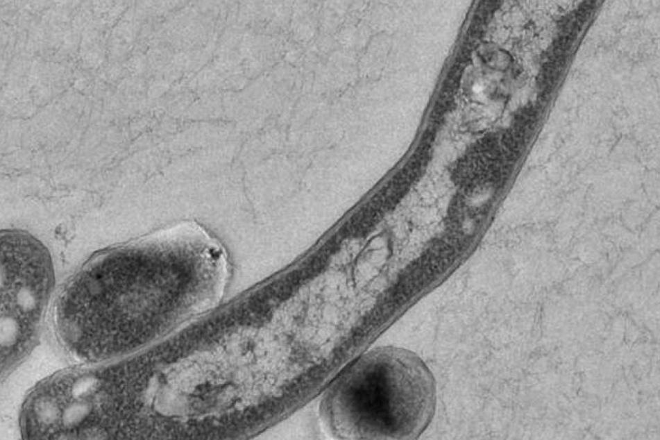 Tuberkulose wird mit Antibiotika behandelt.