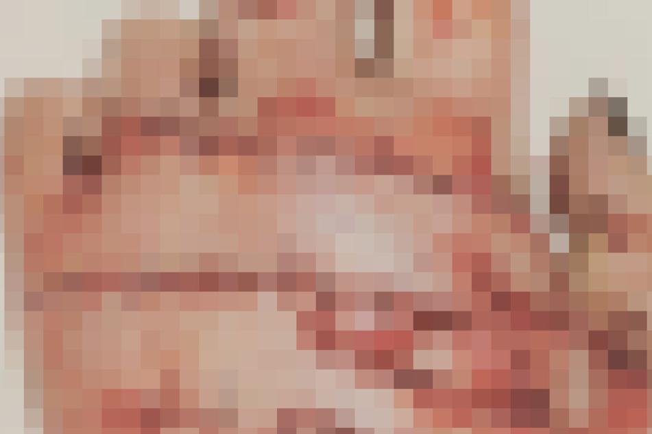 Grausam: Die linke Hand der Frau musste in einer mehrstündigen Operation wieder zusammengesetzt werden.
