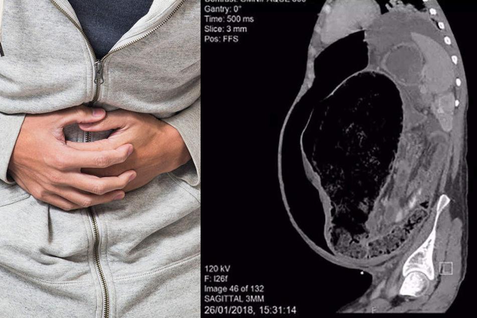 Der Grund für seine heftigen Bauchschmerzen war eine unglaubliche Verstopfung.