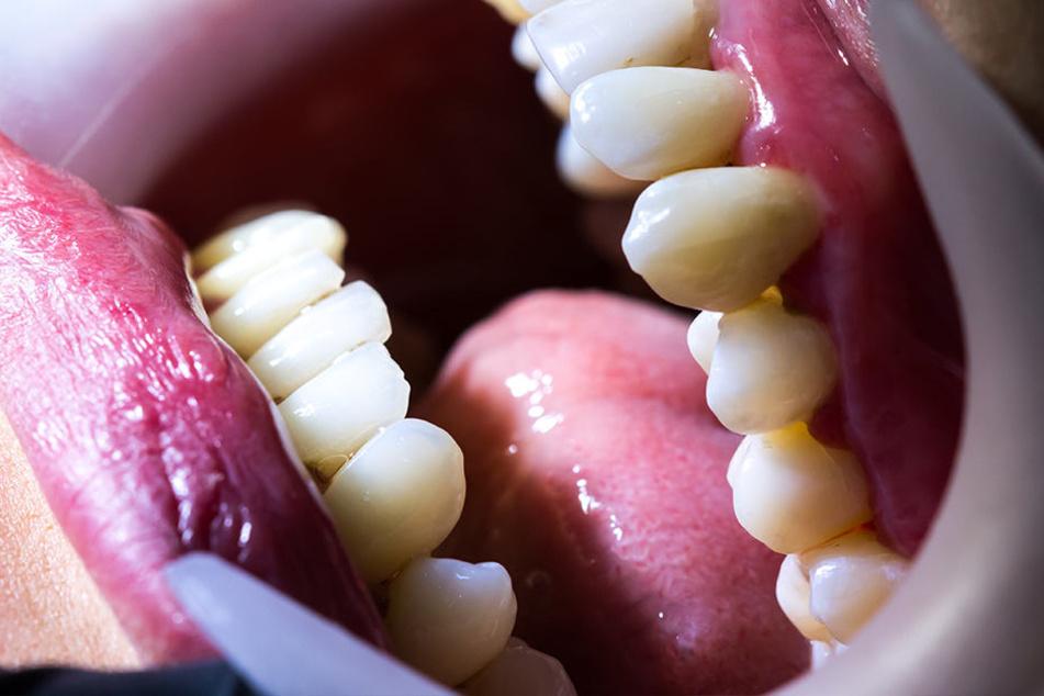 Wunden im Zahnfleisch, schlechte Zähne: Typische Anzeichen von Skorbut.