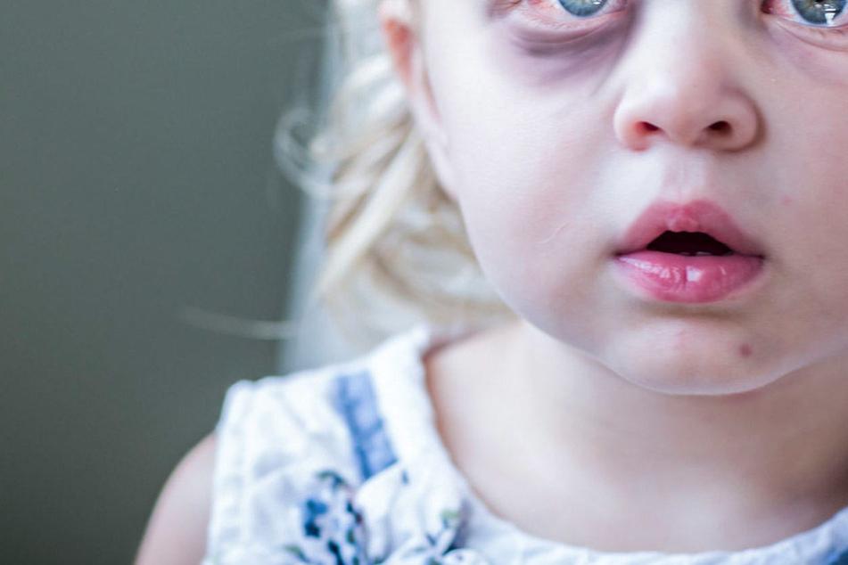 Das kleine Mädchen erlitt ein Schädelhirntrauma. Das Erlebnis wird sie wohl nie vergessen können. (Symbolbild).