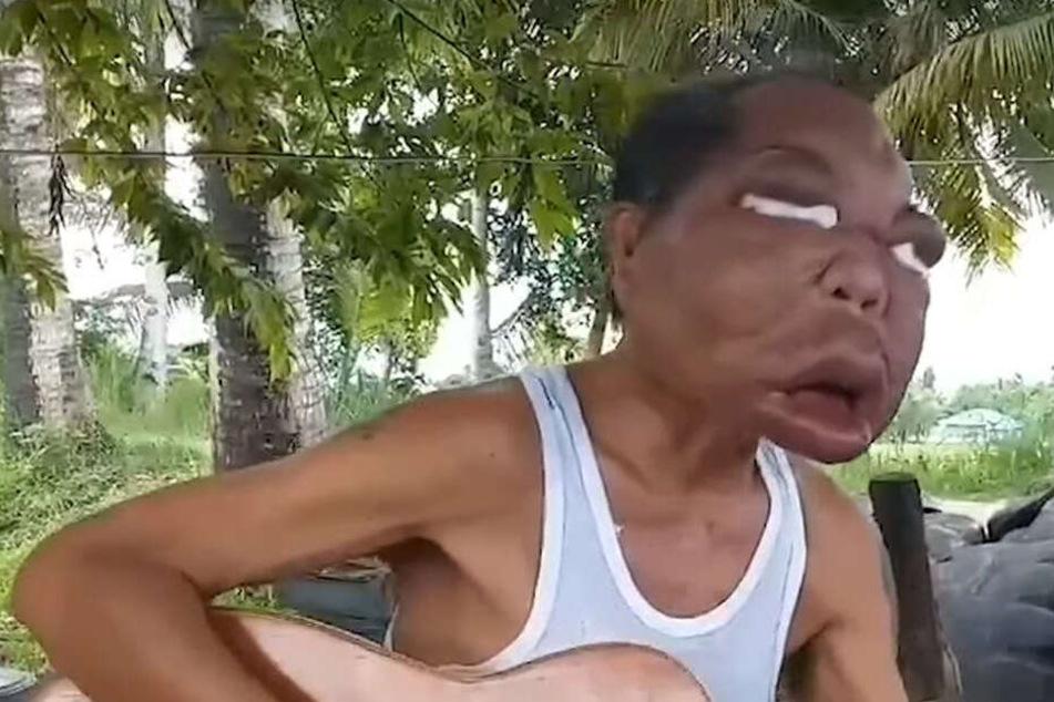 Romulo Pilapil (56) behauptet, dass er seit drei Jahren dieses geschwollene Gesicht hat.