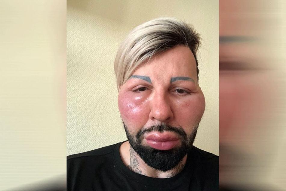 Au Backe: Harald Glööckler schockt Fans mit Horror-Fotos aus Krankenhaus