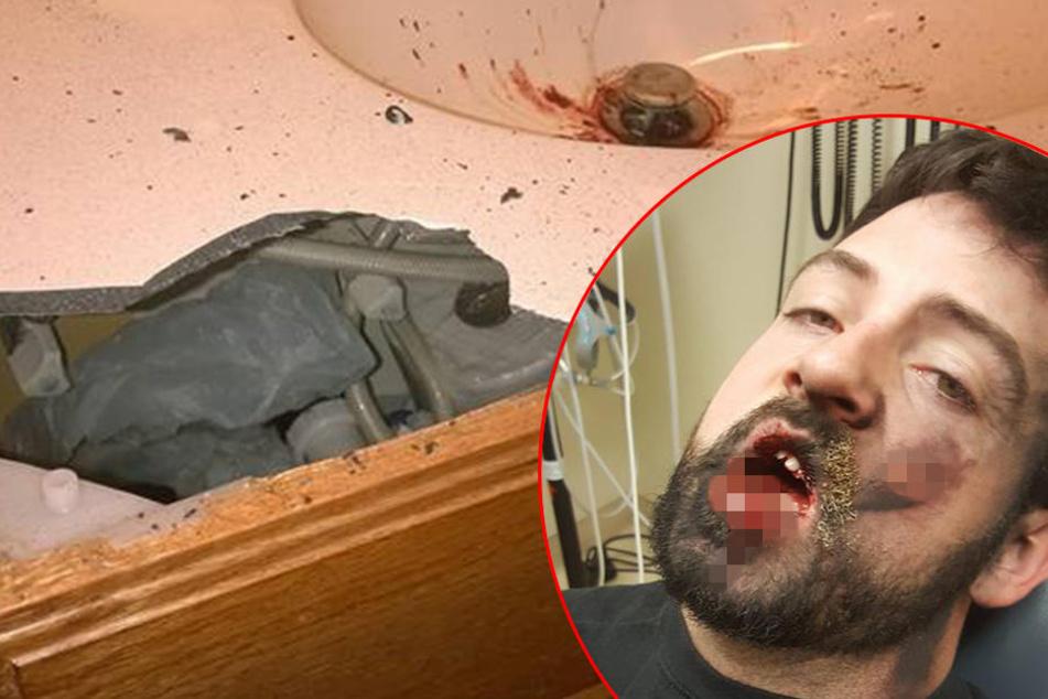 E-Zigarette explodiert! Mann verliert sieben Zähne