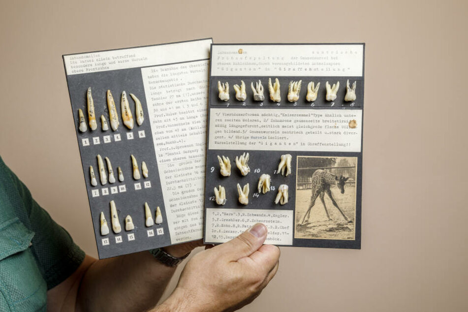 Rund eine Million künstliche Zähne und mehr als 100.000 echte: In der Sammlung von Haesler gibt's wirklich alles.