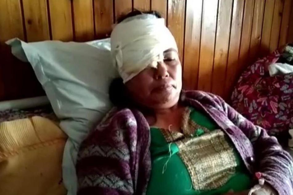 Auch wenn Aruna den Vorfall nicht gänzlich unbeschadet überstanden hat, so ist sie wohl dank ihres Hundes noch am Leben.