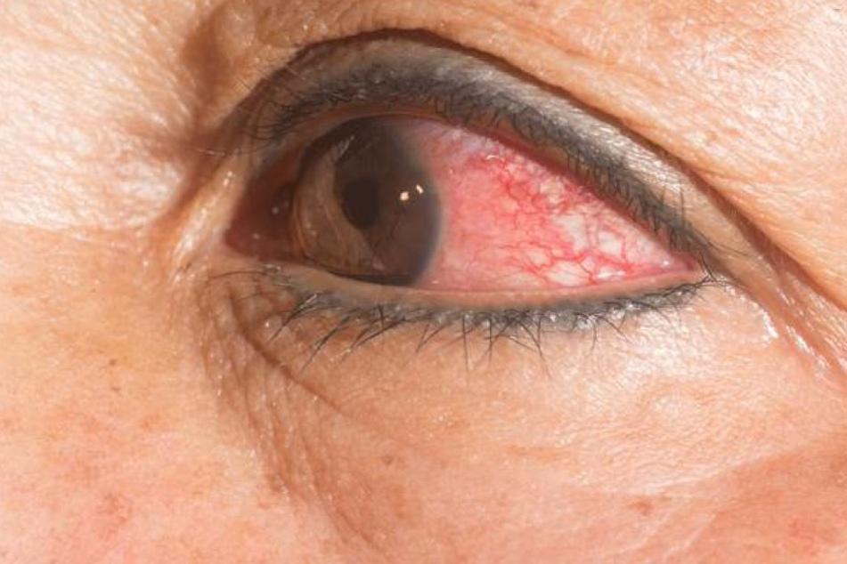 14 Würmer in einem Auge mussten im Februar einer Frau aus den USA entfernt werden.