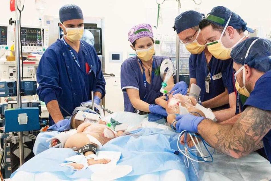 In einer sechsstündigen Operation gelang es Ärzten in der australischen Millionenmetropole Melbourne, ein siamesisches Zwillingspaar erfolgreich zu trennen.