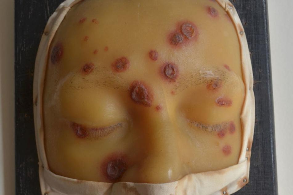 Eine Wachs-Maske zeigt Syphilis-Symptome in einem späteren Stadium.