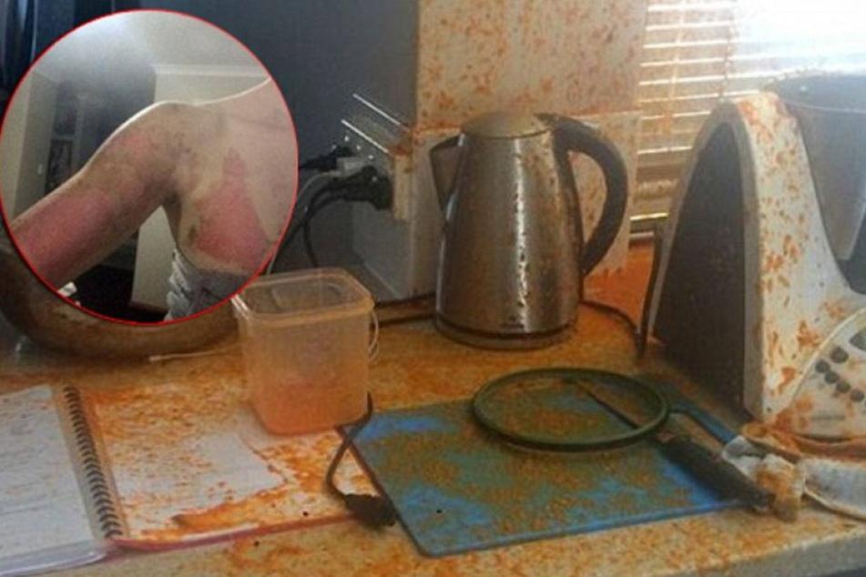 Mutter bei Unfall mit Thermomix schwer verletzt