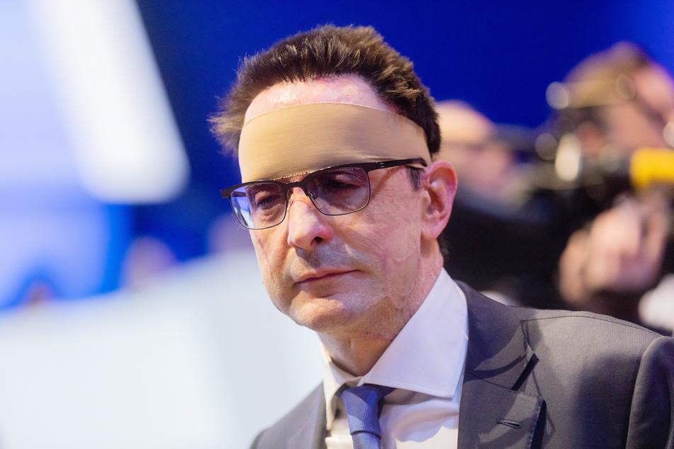 Der Säureanschlag auf Bernhard Günther (54), damaliger Finanzvorstand von Innogy, ist auch nach drei Jahren noch nicht aufgeklärt.