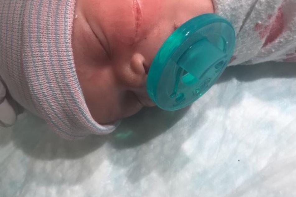 In Denver verletzten die Ärzte bei einem Not-Kaiserschnitt versehentlich die Wange von Baby Kyanni Williams. Die tiefe Wunde musste mit 13 Stichen genäht werden.