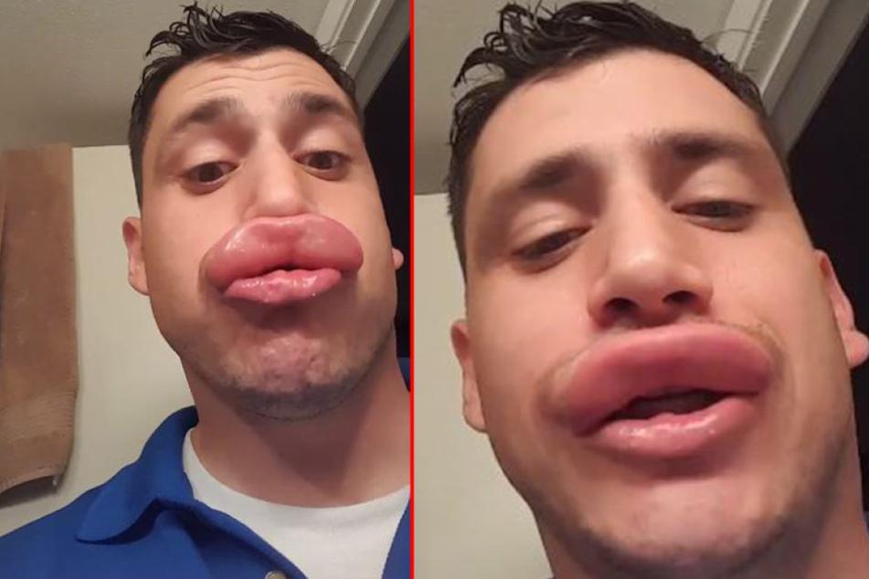 Wespenstich Lippe