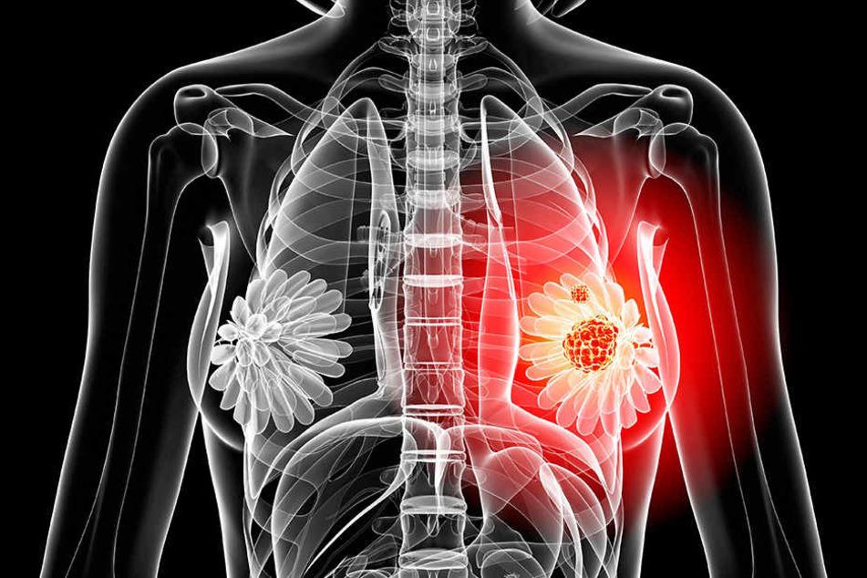 Nicht jeder Knoten in der Brust muss gleich Krebs sein. Dennoch gefährdet der Eingriff die sinnlich schöne Form.