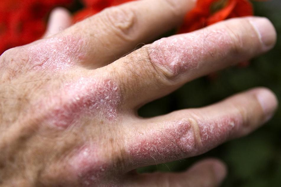 Schmerzhaft: Schuppenflechte an der Hand eines Mannes.