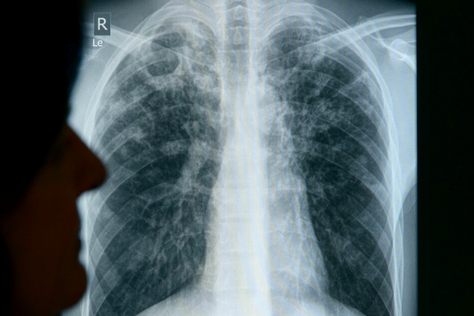Röntgenaufnahmen einer Patientin. (Symbolbild)