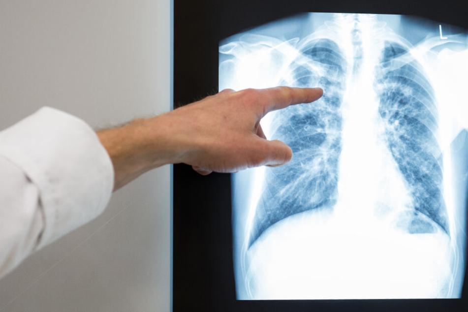 Röntgenbilder und ähnlich sensible Patientendaten waren im Internet frei zugänglich. (Symbolbild)