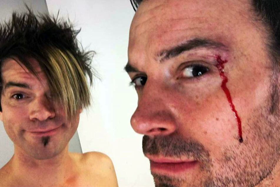 Nach einer Styling-Panne fließt das Blut bei Andreas.