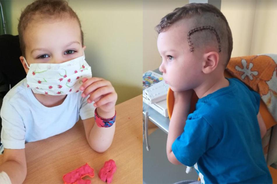 """""""Wenn seine Blutwerte gut sind, darf Brian zwischen den Chemos auch nach Hause"""", erzählt seine Mutter."""
