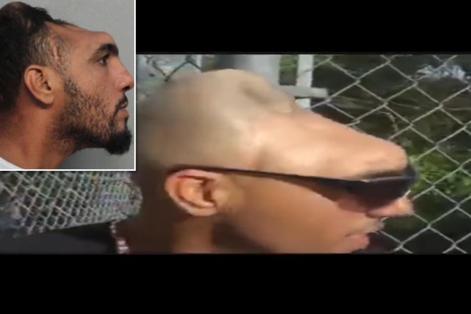 Mann mit halbem Kopf wegen Mordes angeklagt