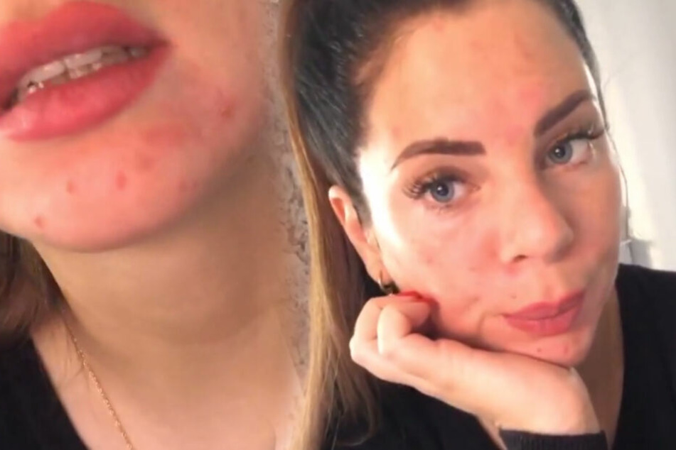 Jenny zeigte ihre Hautunreinheiten auch in Großaufnahme. (Montage)