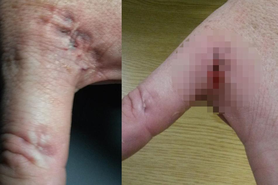 Bundespolizist wird in Hand gebissen: Zahn bleibt stecken