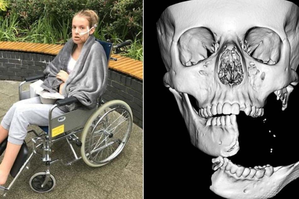 Emily Eccles stürzte so unglücklich von ihrem Pferd, dass ihr halber Kiefer an einem Laternenpfahl abgerissen wurde.