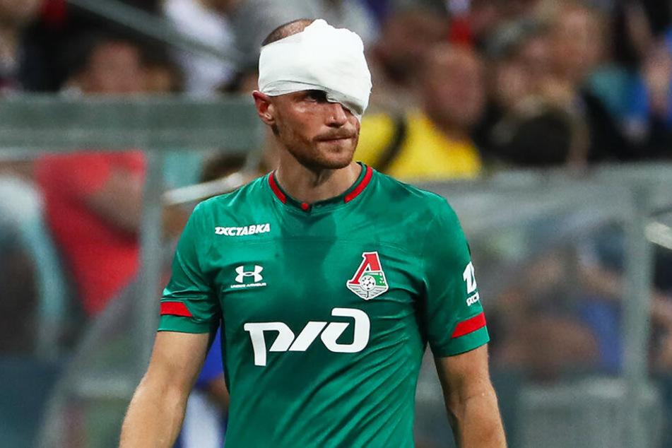 Gegen den FC Sochi verletzte sich Höwedes am Wochenende am Kopf, musste zehn Minuten vor Schluss ausgewechselt werden. Sein Einsatz am Mittwoch ist daher noch mit dem ein oder anderen Fragezeichen versehen.
