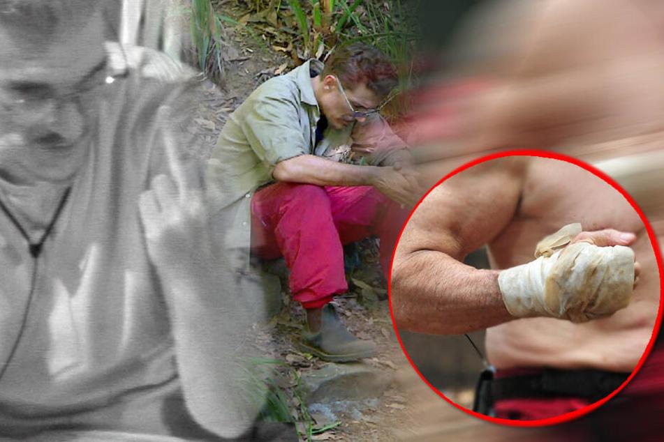 Dschungelcamp: Ist der Dschungel zu hart? Blutige Verletzung bei Prüfung!