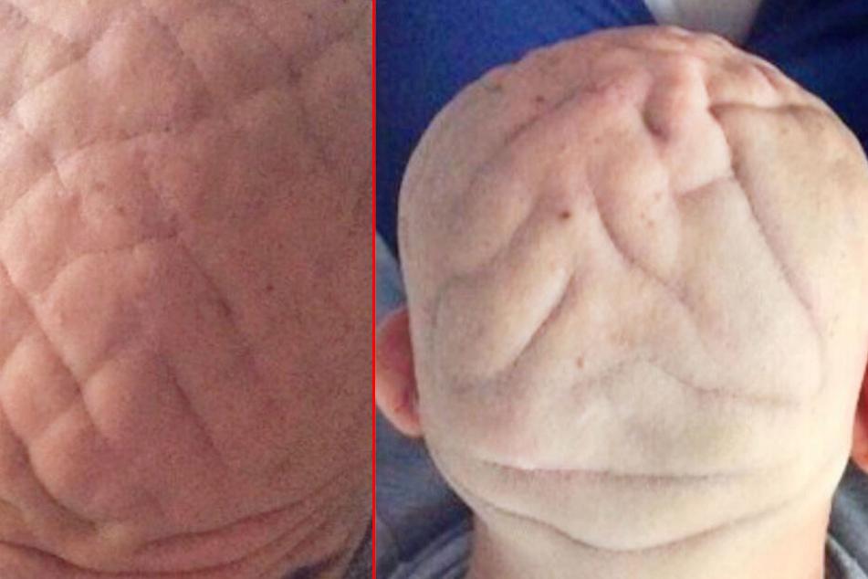Frau bemerkt merkwürdige Falten auf dem Kopf ihres Mannes: Das steckt dahinter