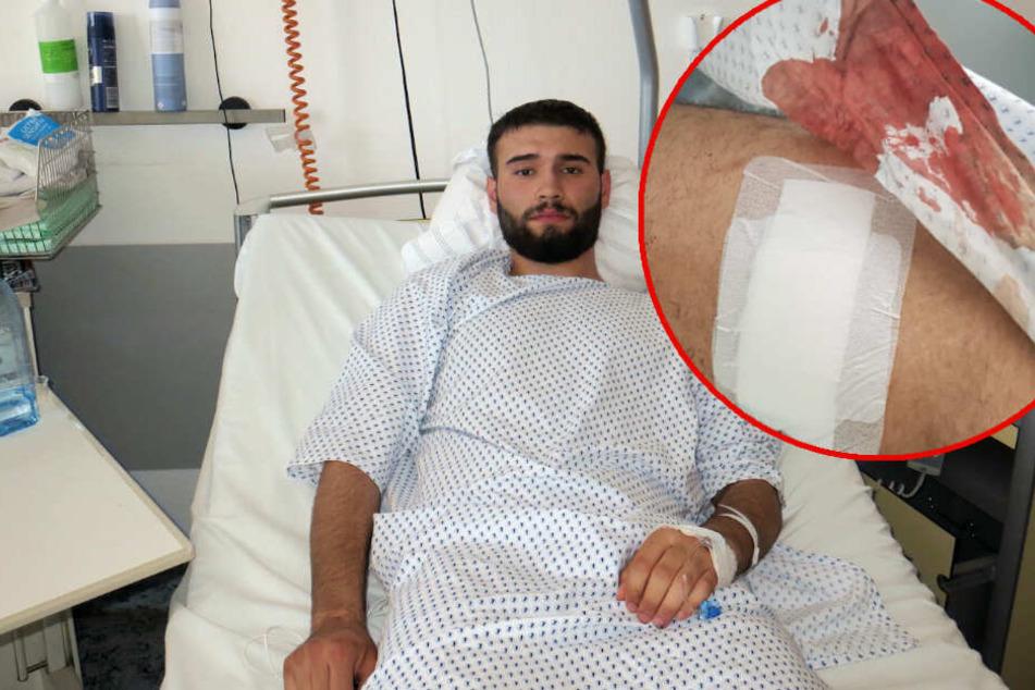 Hajar D. (18) liegt im Krankenhaus. Nach dem er gegen die Messer-Brüder von der Eisenbahnstraße ausgesagt hatte, wurde er am Dienstag selbst niedergestochen.