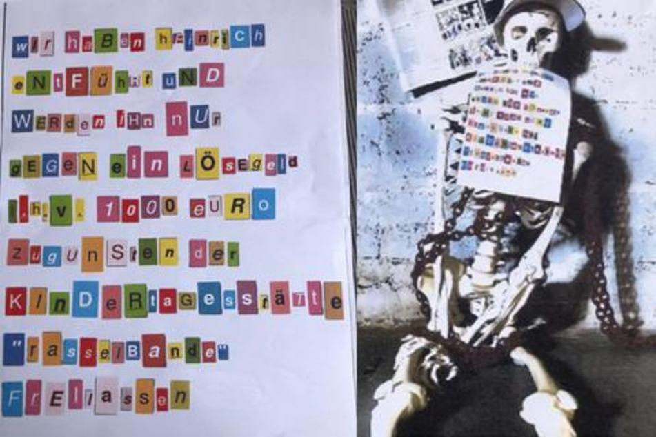 """Riesen-Wirbel um entführtes Plastik-Skelett """"Heinrich"""": Das steckt dahinter"""